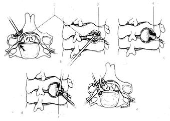 Laminoplasty image1
